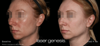 Cosmetic Lasers